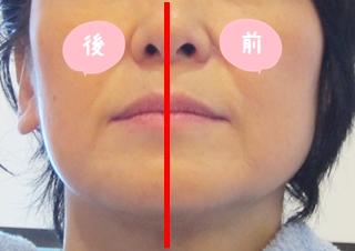 リンパマッサージ 顔 効果