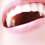 歯 色素沈着 落とす